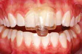 Dr. Jayne often recommends a custom-fitted night guard to help patients with TMJ disorder.